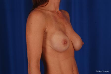 Breast Augmentation: Patient 158 - Before Image 2