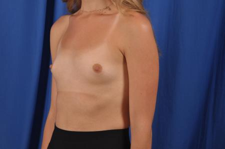 Breast Augmentation: Patient 82 - Before Image 4