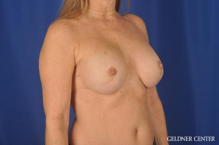 Complex Breast Augmentation: Patient 36 - After Image 2