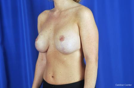 Chicago Breast Lift 2291 -  After Image 3