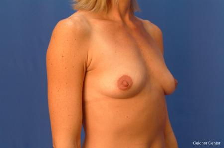 Breast Augmentation Lake Shore Dr, Chicago 2446 - Before Image 2