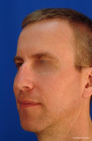 Rhinoplasty For Men: Patient 1 - Before and After Image 4