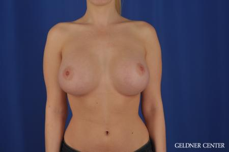 Breast Augmentation Lake Shore Dr, Chicago 4293 -  After Image 1