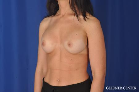 Complex Breast Augmentation: Patient 33 - Before and After Image 4