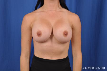 Breast Augmentation: Patient 145 - After Image 1