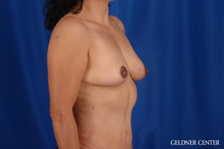 Breast Reduction Hinsdale, Chicago 2630 -  After 3