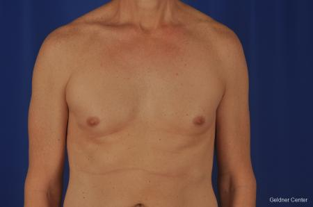 Gynecomastia: Patient 2 - Before Image 1