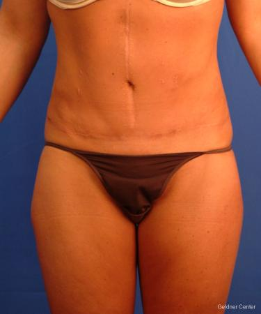 Liposuction: Patient 16 - After Image 1