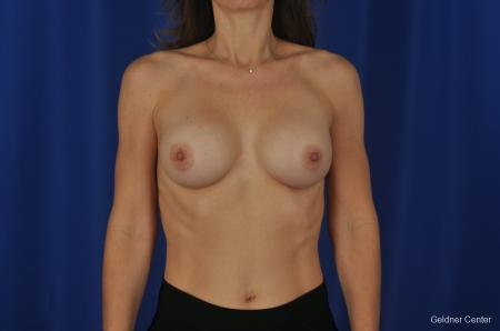Chicago Breast Augmentation Natrelle Smooth Gel Implants 2067 - After Image