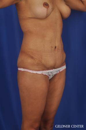 Tummy Tuck: Patient 33 - After Image 2