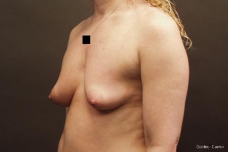 Breast Augmentation Lake Shore Dr, Chicago 2436 - Before and After Image 5