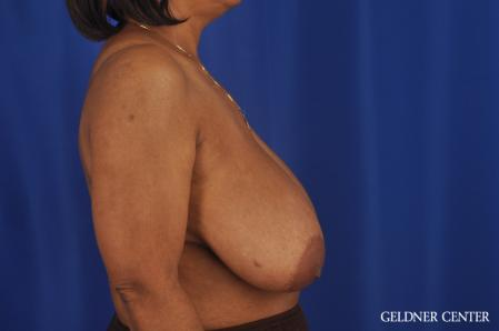 Breast Reduction: Patient 35 - Before Image 3