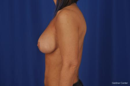 Breast Augmentation Hinsdale, Chicago 2335 -  After Image 4
