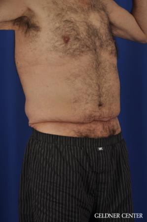 Abdominoplasty For Men: Patient 3 - Before Image 2