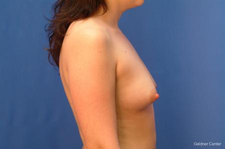 Chicago Breast Augmentation 2517 - Before Image 2