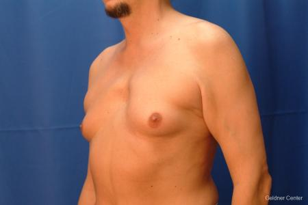 Gynecomastia: Patient 6 - Before and After Image 4