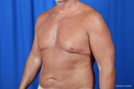 Gynecomastia: Patient 7 - Before and After Image 4