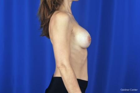 Chicago Breast Augmentation Natrelle Smooth Gel Implants 2067 -  After Image 2