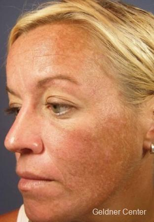 Chicago VI chemical peel patient 2313 before and after photos - Before Image