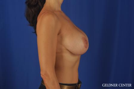Chicago Breast Augmentation 5475 -  After Image 3