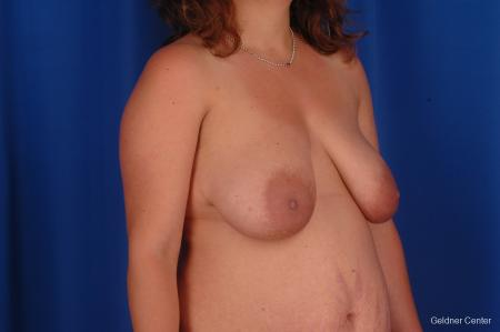 Complex Breast Augmentation Hinsdale, Chicago 2300 - Before and After Image 2