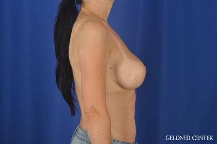 Breast Augmentation: Patient 174 - After 3
