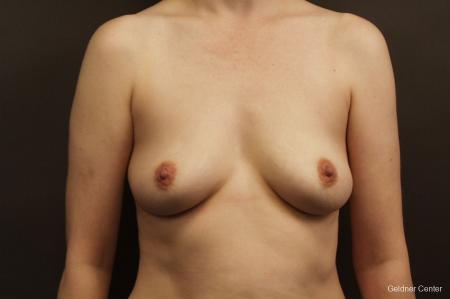 Chicago Breast Augmentation 2413 - Before Image 1