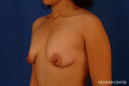 Breast Augmentation: Patient 160 - Before and After Image 4