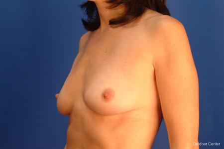 Breast Augmentation Streeterville, Chicago 2437 - Before and After Image 4