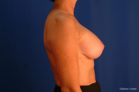 Breast Lift Hinsdale, Chicago 2509 -  After Image 2