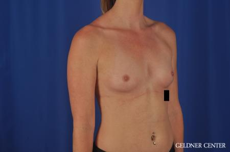Breast Augmentation Lake Shore Dr, Chicago 6658 - Before Image 2