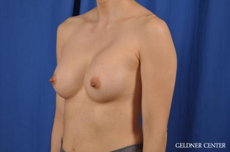 Breast Augmentation: Patient 152 - After Image 5