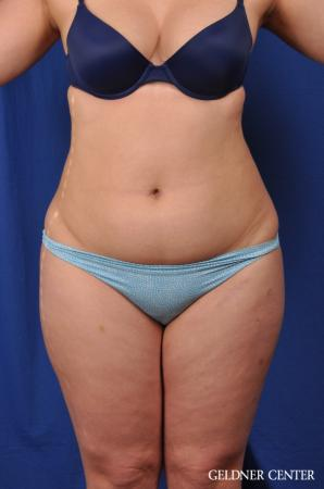 Liposuction: Patient 22 - Before Image 1
