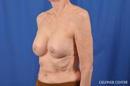 Breast Augmentation: Patient 138 - After Image 4