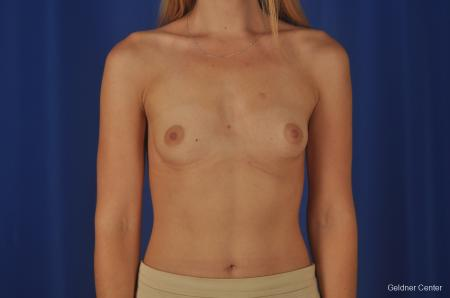 Breast Augmentation: Patient 149 - Before Image 1