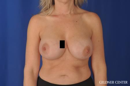 Complex Breast Augmentation Streeterville, Chicago 11971 -  After 1