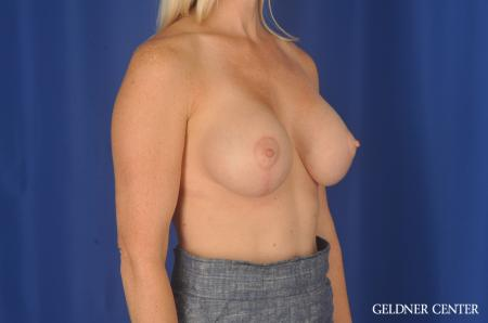 Breast Augmentation: Patient 83 - After Image 3