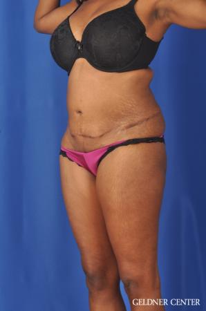 Abdominoplasty: Patient 6 - Before and After Image 4