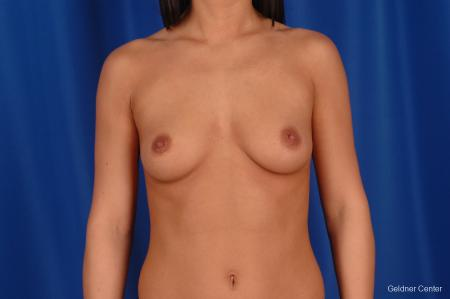 Breast Augmentation Lake Shore Dr, Chicago 2402 - Before Image 1