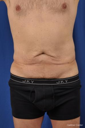 Abdominoplasty-for-men: Patient 2 - Before Image