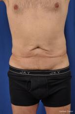 Abdominoplasty-for-men: Patient 2 - Before