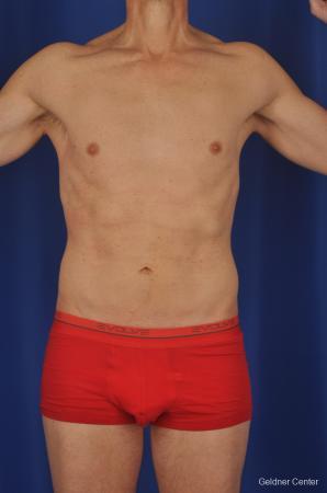 Liposuction For Men: Patient 2 - After Image 1