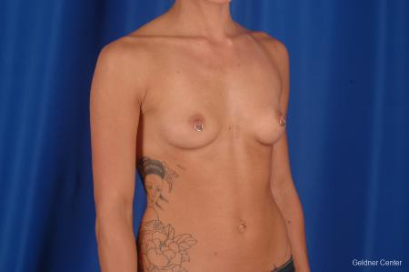 Chicago Breast Augmentation 2328 - Before Image 3
