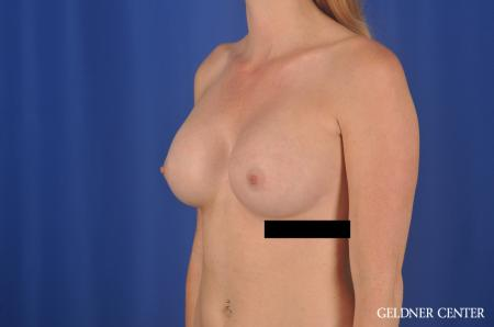 Breast Augmentation Lake Shore Dr, Chicago 6658 -  After Image 4