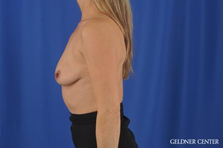 Breast Augmentation Hinsdale, Chicago 11861 - Before and After Image 5