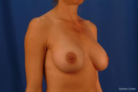 Breast Augmentation Lake Shore Dr, Chicago 2446 -  After Image 2