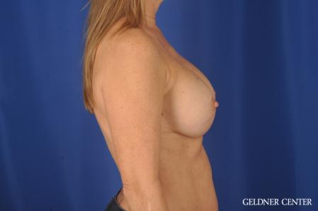 Complex Breast Augmentation: Patient 36 - After Image 3
