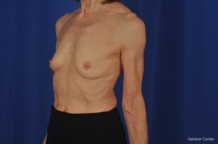 Breast Augmentation Hinsdale, Chicago 2055 - Before and After Image 4