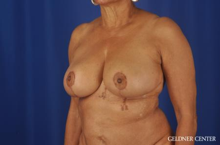 Breast Reduction Streeterville, Chicago 6650 -  After 4