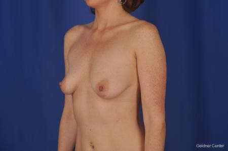 Chicago Complex Breast Augmentation 2400 - Before and After Image 3